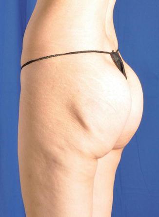 Buttocks Augmentation | SpringerLink