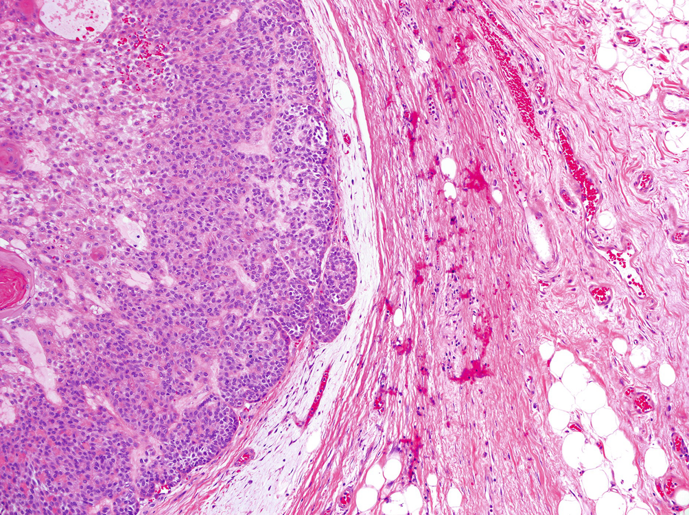 pleomorphic adenoma histopathology pdf)