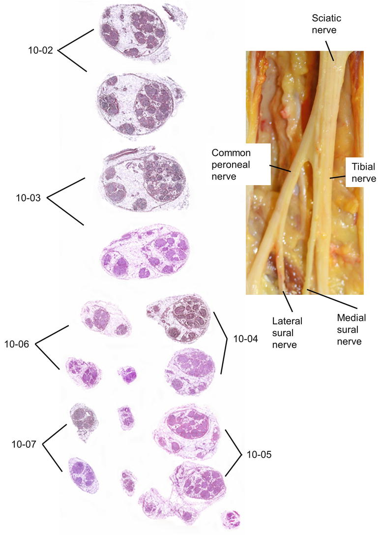 Cross Sectional Microscopic Anatomy Of The Sciatic Nerve And Its