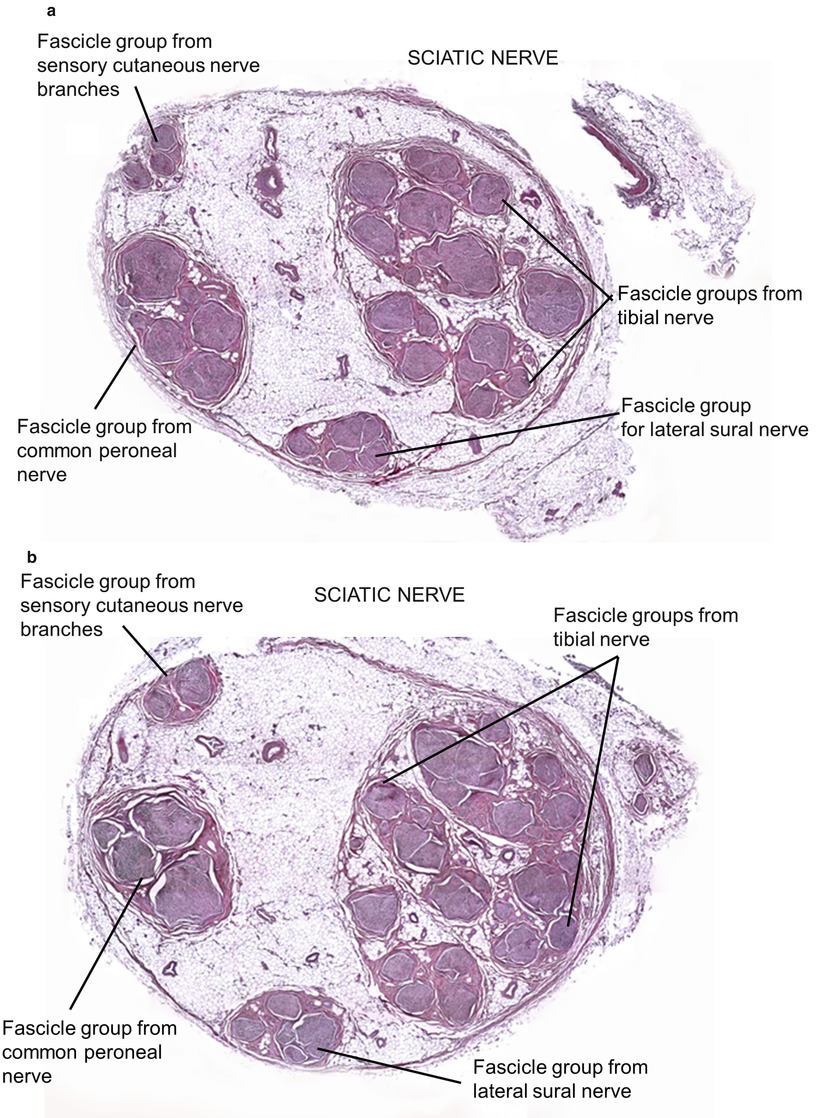 Cross-sectional Microscopic Anatomy of the Sciatic Nerve and its ...