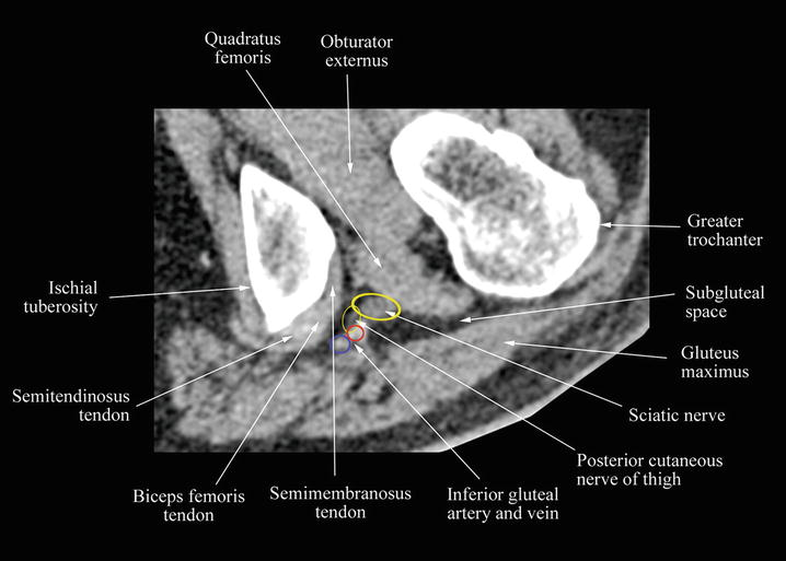 High-Definition and Three-Dimensional Volumetric Ultrasound Imaging ...