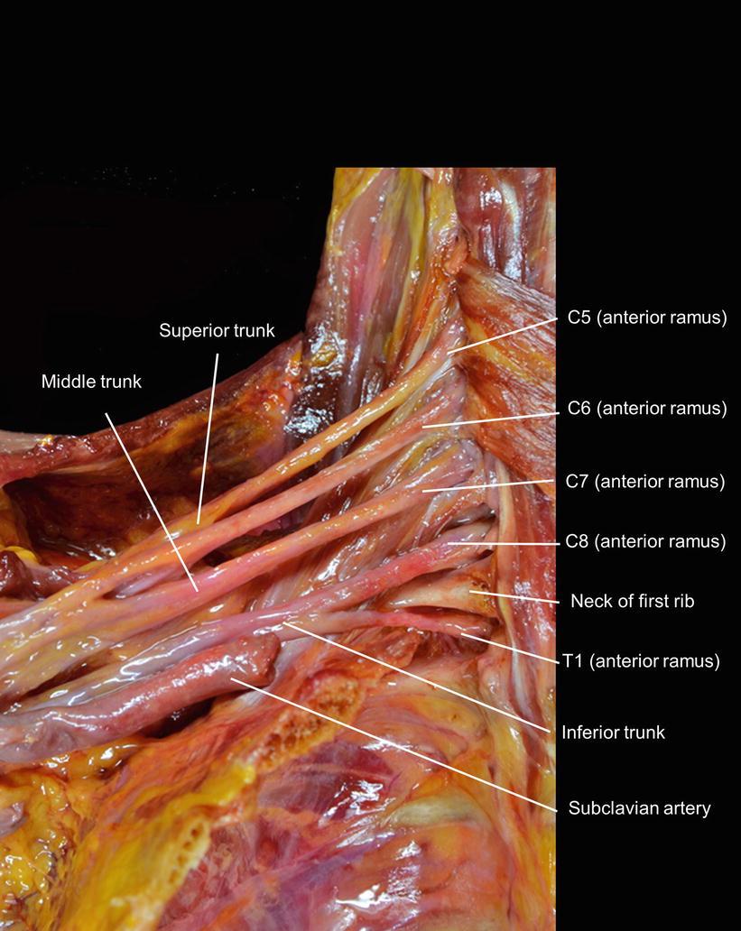 Macroscopic View of the Cervical Plexus and Brachial Plexus ...
