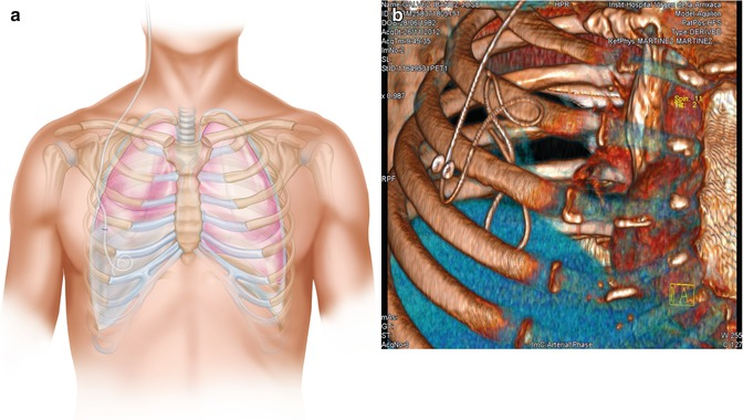 Complications Specific to Pleural Type of CSF Shunt   SpringerLink