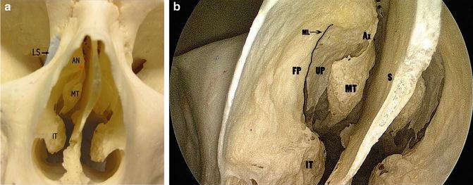 Nasal Anatomy and Evaluation | SpringerLink