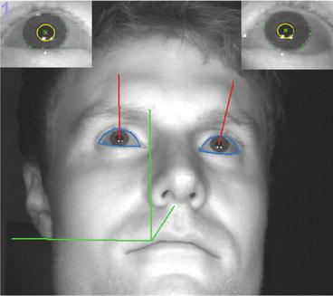 Stochastic Anomaly Detection in Eye-Tracking Data for Quantification