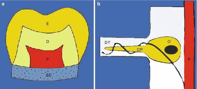 Pain of Odontogenic and Non-odontogenic Origin   SpringerLink