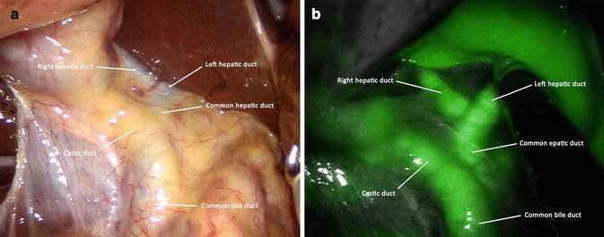 Robotic Surgery Using Firefly System Springerlink