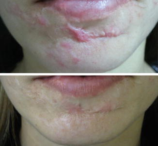 Intense Pulsed Light for Rosacea and Other Indications