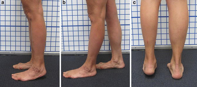 Case 50: Ankle Distraction for Arthrosis Using the SBI