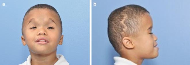 Ocular Manifestations Of Craniofacial Disorders Springerlink