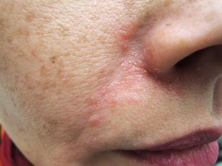 Seborrheic Dermatitis | SpringerLink