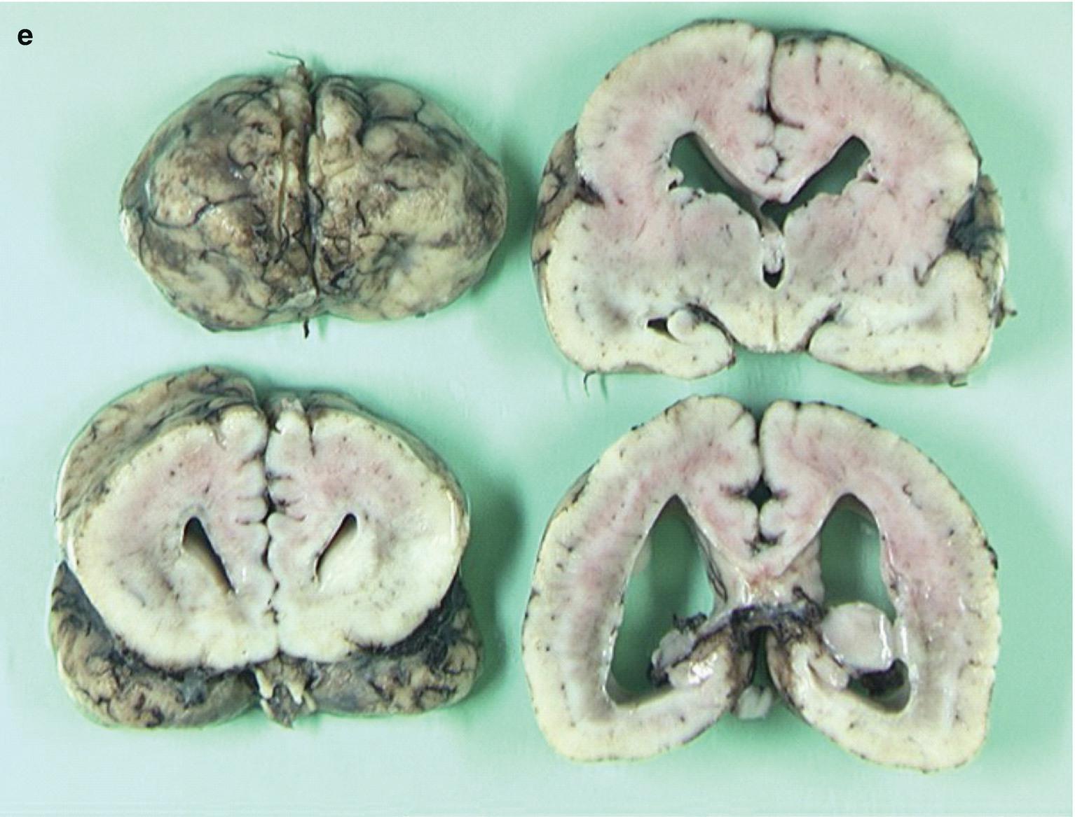 Brain Malformations | SpringerLink