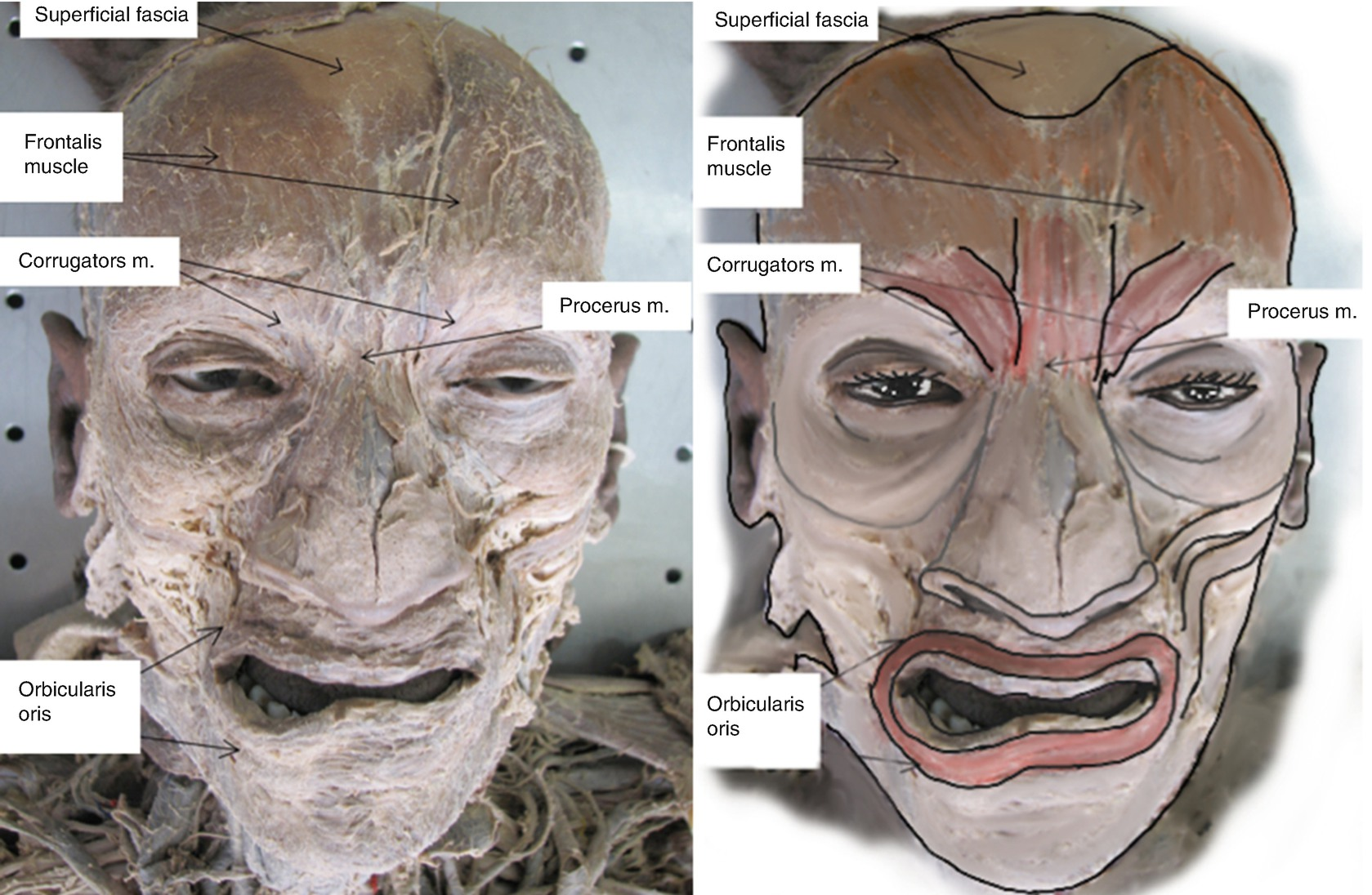 Facial Anatomy View for Aesthetic Fillers Injections