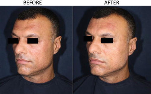 Hyaluronic Acid Filler for Forehead, Temporal, and