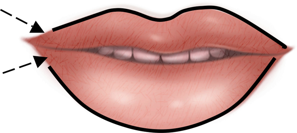 Hyaluronic Acid Filler for the Lips and Perioral Area | SpringerLink