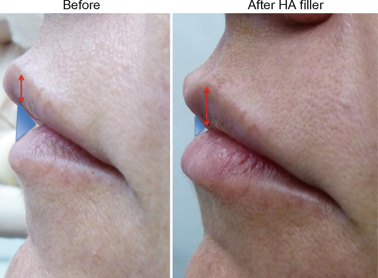 Hyaluronic Acid Filler for the Lips and Perioral Area