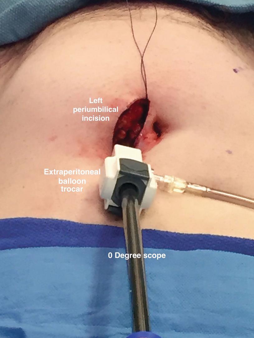 Extraperitoneal Robot Assisted Radical Prostatectomy Simulating