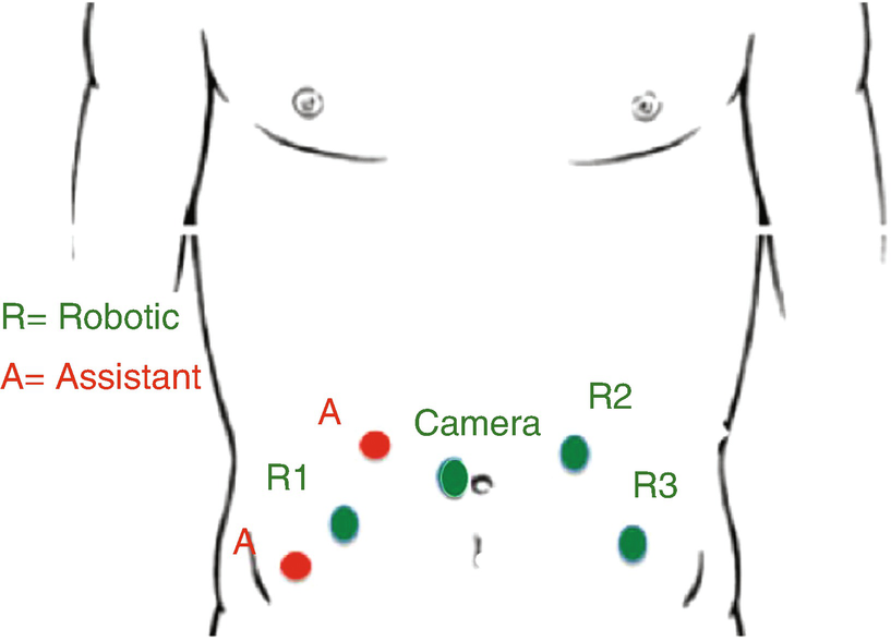 Retzius Sparing Approach For Robot Assisted Laparoscopic Radical