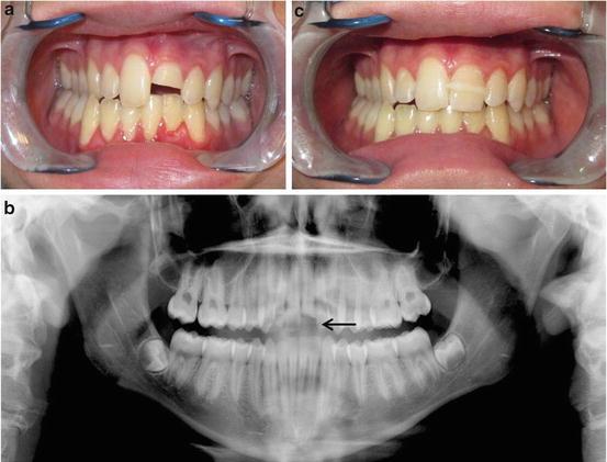 Dental And Temporomandibular Joint Injuries Springerlink
