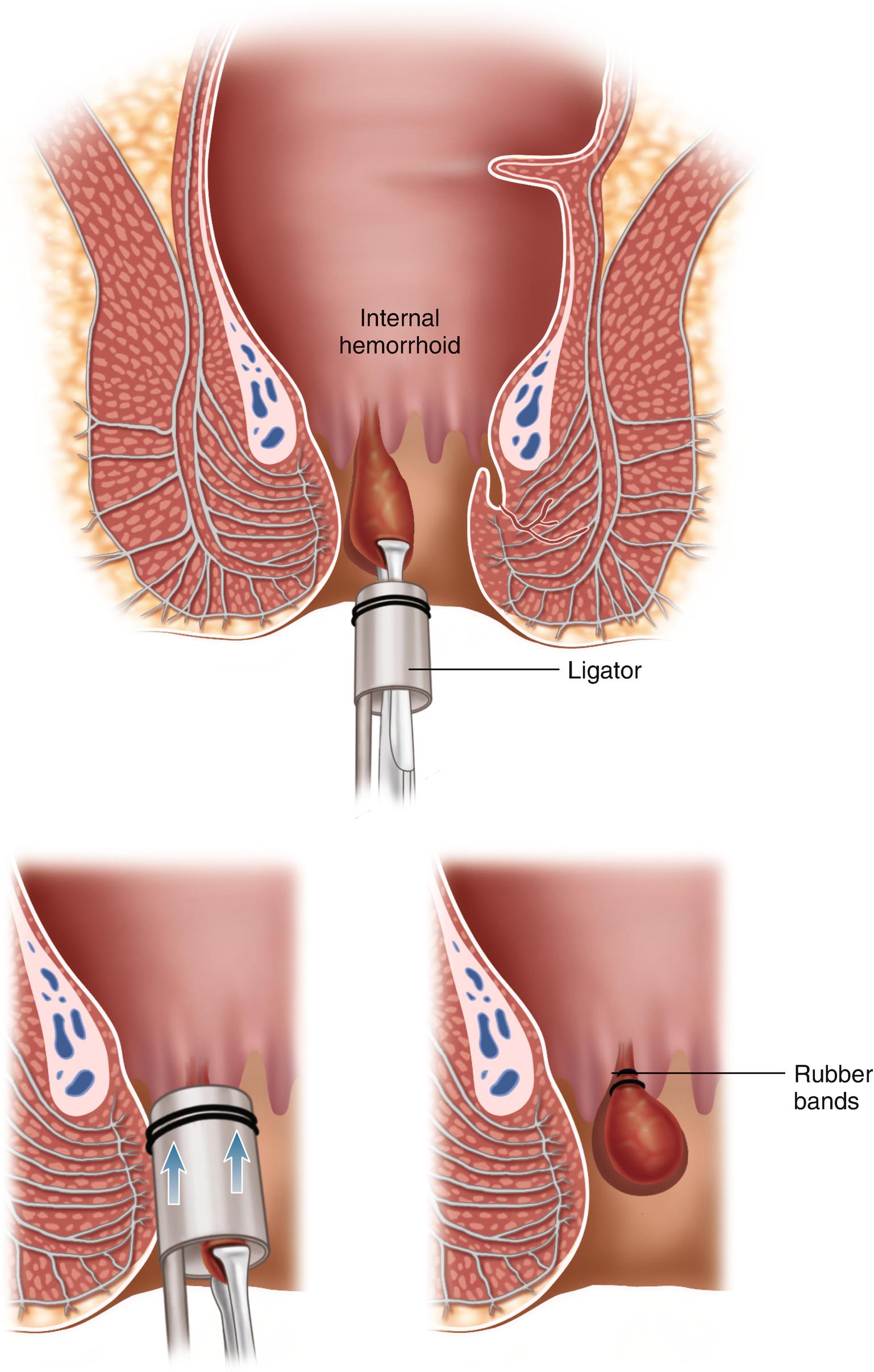 Hemorrhoids Springerlink