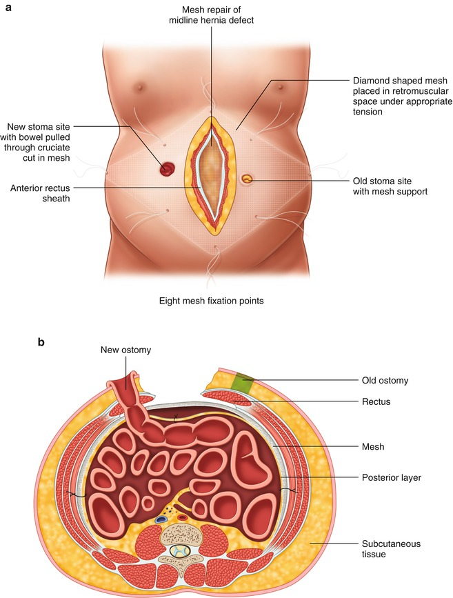 Open Parastomal Hernia Repair | SpringerLink