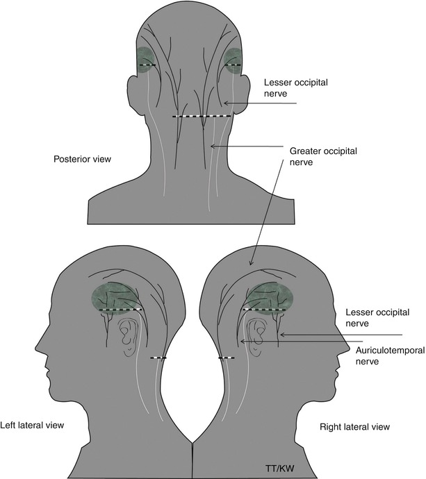 Greater Occipital Nerve Entrapment | SpringerLink