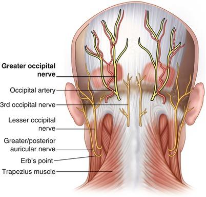 Greater Occipital Nerve Entrapment | SpringerLink