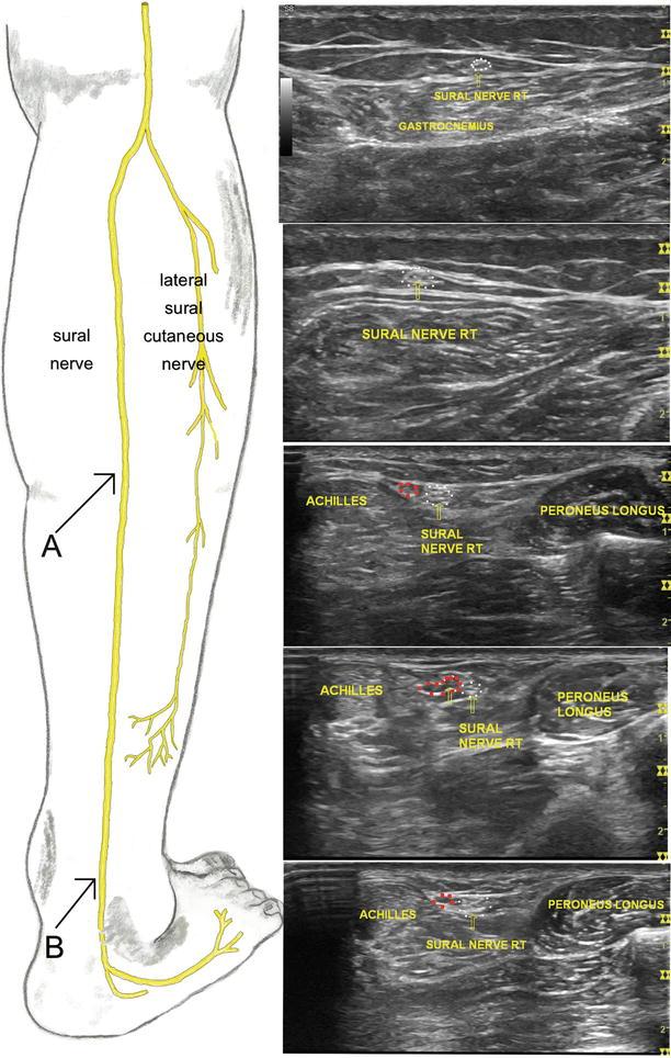 Sural Nerve Entrapment Springerlink