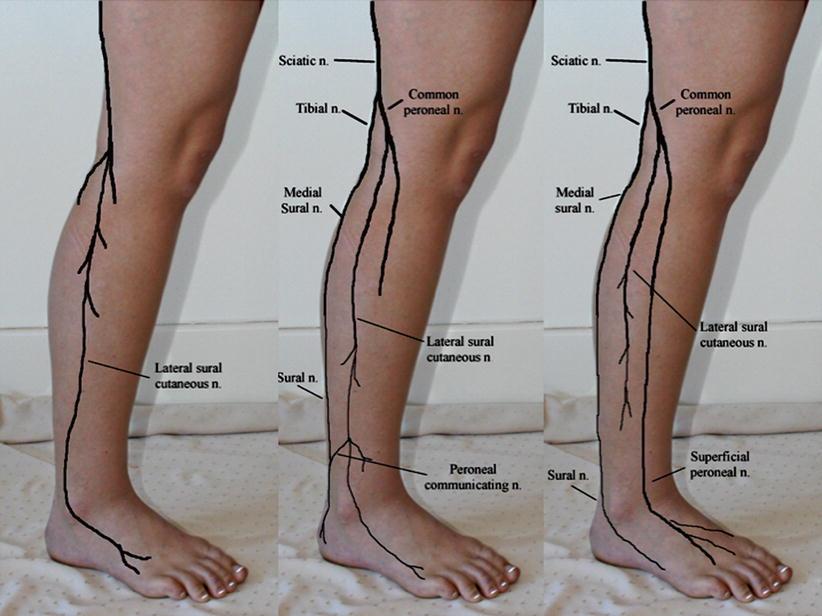 Lateral Sural Cutaneous Nerve Entrapment | SpringerLink