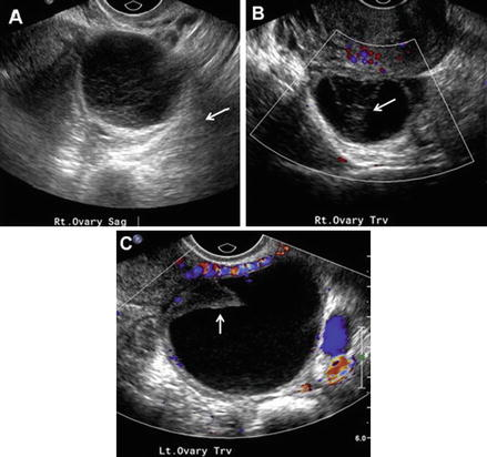 Adnexal Masses and Ovarian Cyst Rupture | SpringerLink