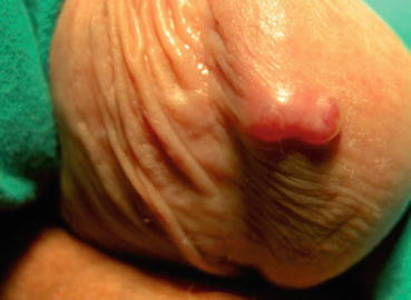 eruptie & numar scazut de trombocite & sarcom kaposi: Causes & Reasons - Symptoma