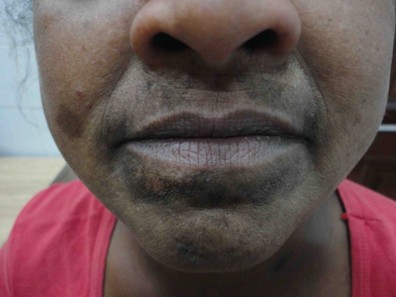Dermatologic Manifestations in Renal Failure   SpringerLink