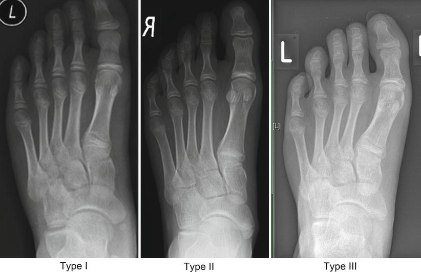 Evidence Based Treatment Of Accessory Navicular Bone Springerlink The accessory navicular, which is considered an anatomic variant, may be the source of pain in athletes. evidence based treatment of accessory
