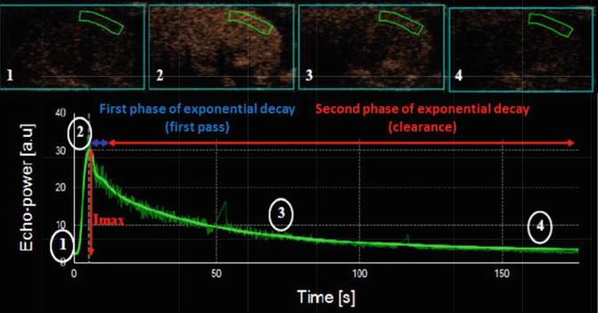 Ultrasound | SpringerLink
