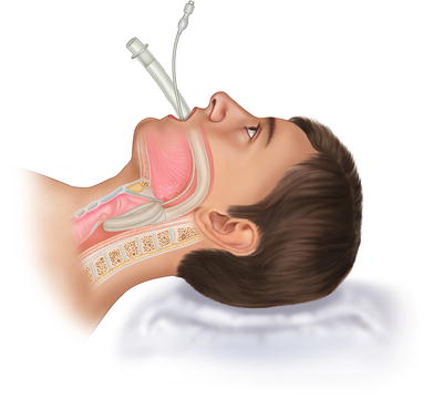 Bildresultat för uncuffed laryngeal mask anesthesia