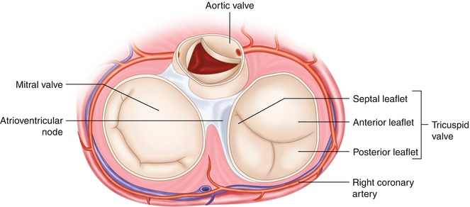Anatomy Of The Tricuspid Valve And Pathophysiology Of Functional