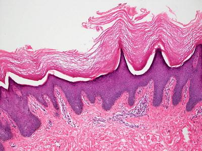 Papulosquamous Diseases | SpringerLink