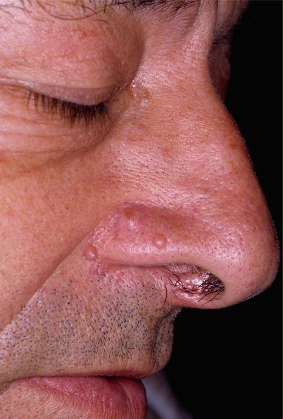 Fibrous Papule | SpringerLink