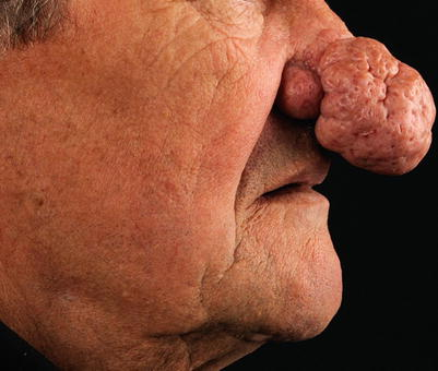 Sebaceous Hyperplasia and Rhinophyma | SpringerLink