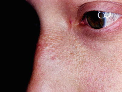 Sebaceous Hyperplasia and Rhinophyma | SpringerLink