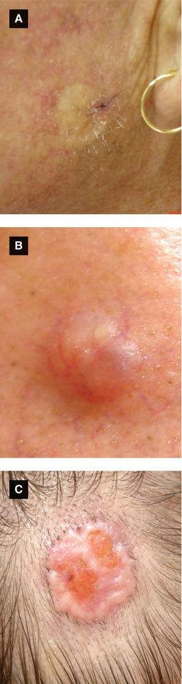 Benign and Malignant Tumors   SpringerLink