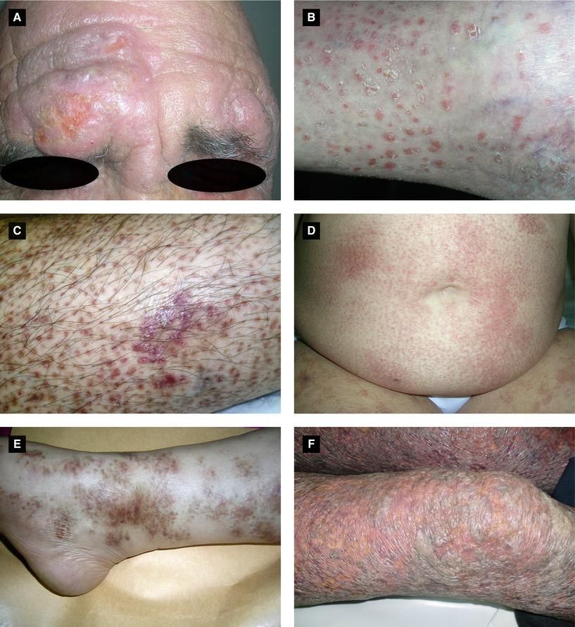 Benign and Malignant Tumors | SpringerLink