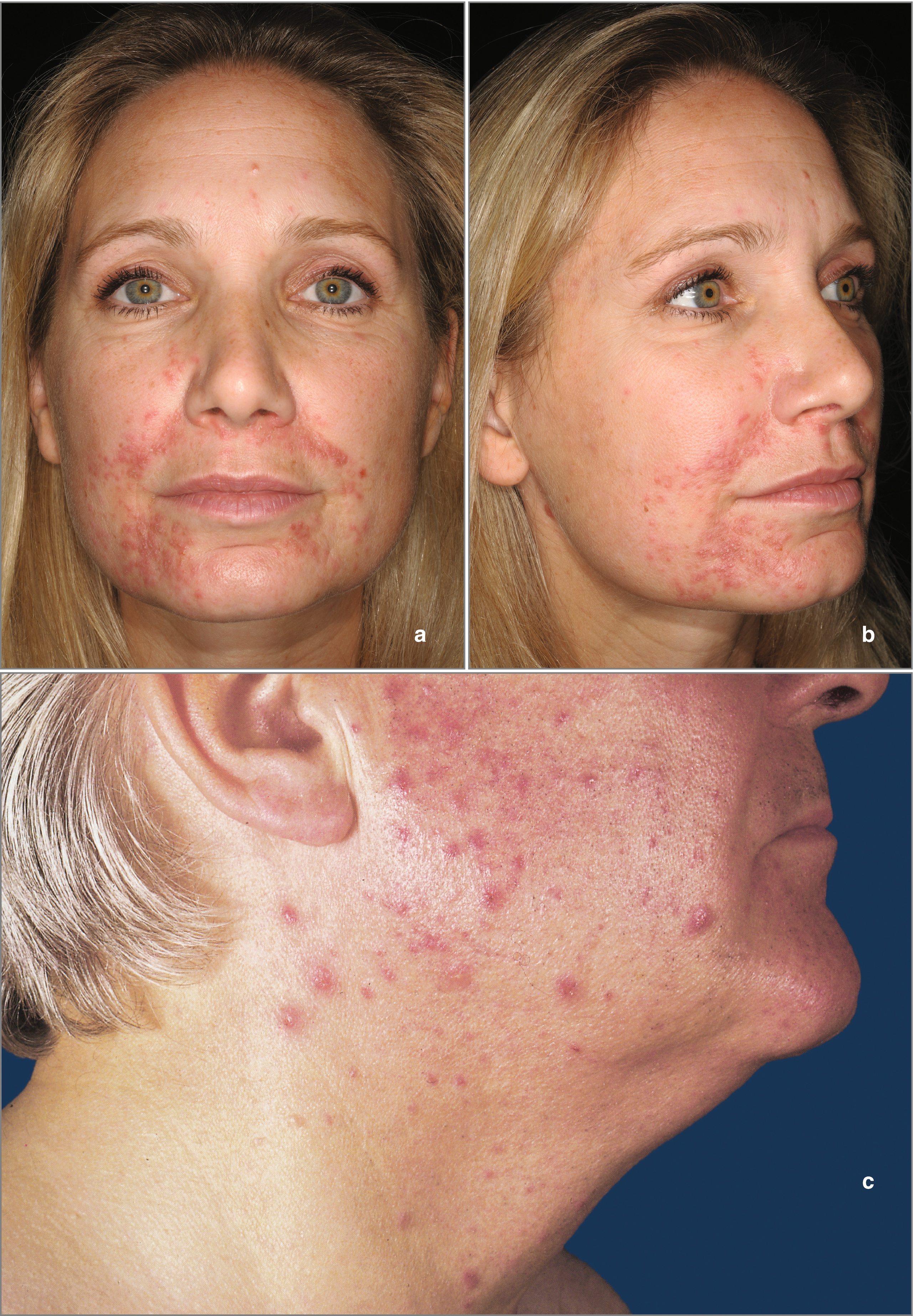 Rosacea Clinic and Classification | SpringerLink