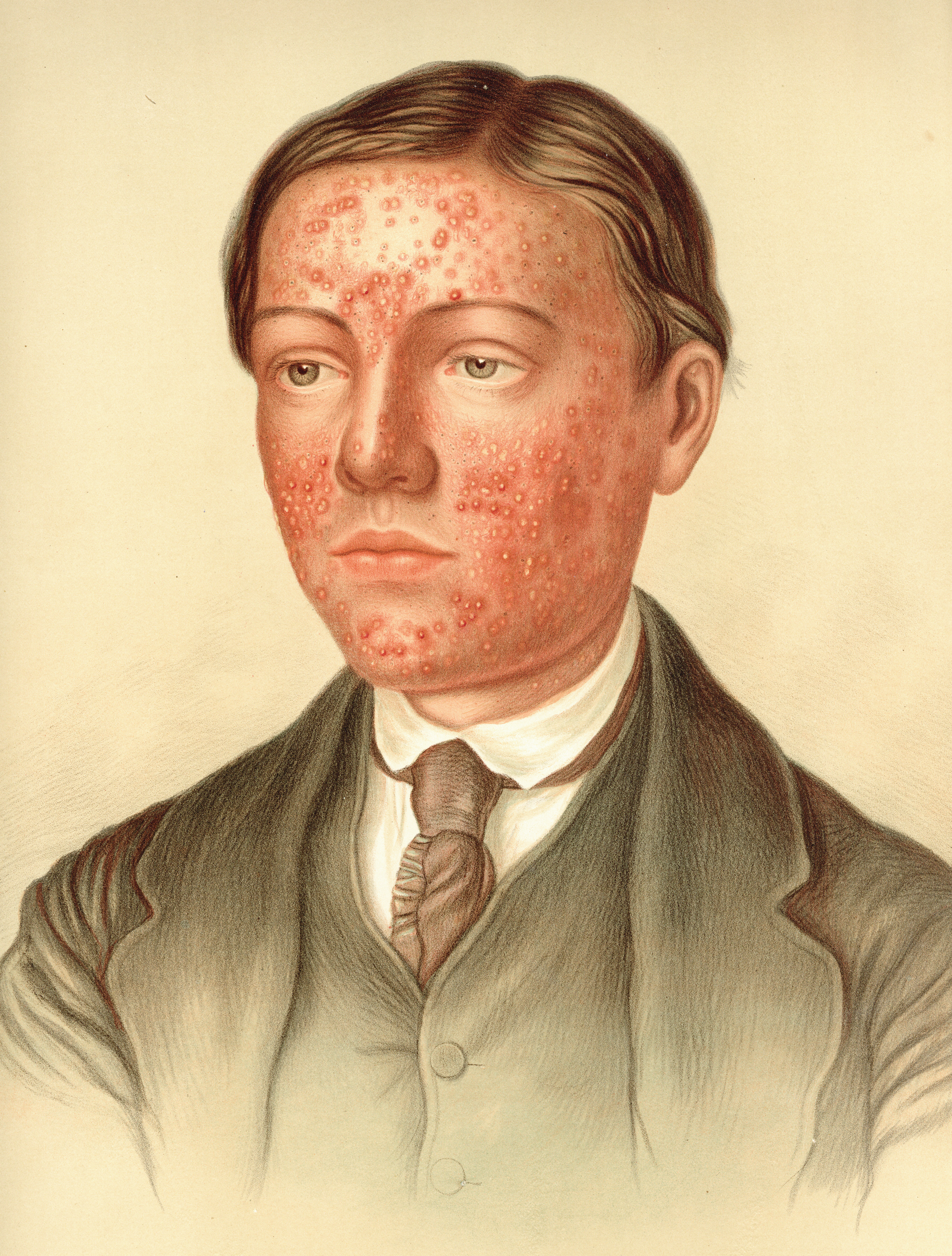 History of Acne and Rosacea | SpringerLink