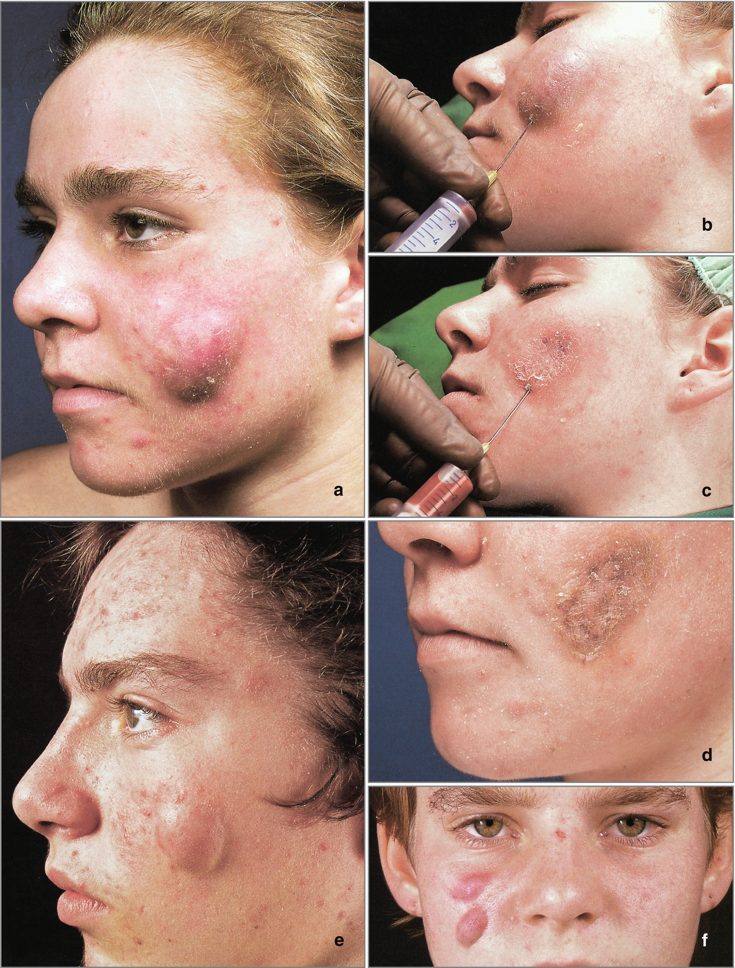 Acne Therapy | SpringerLink