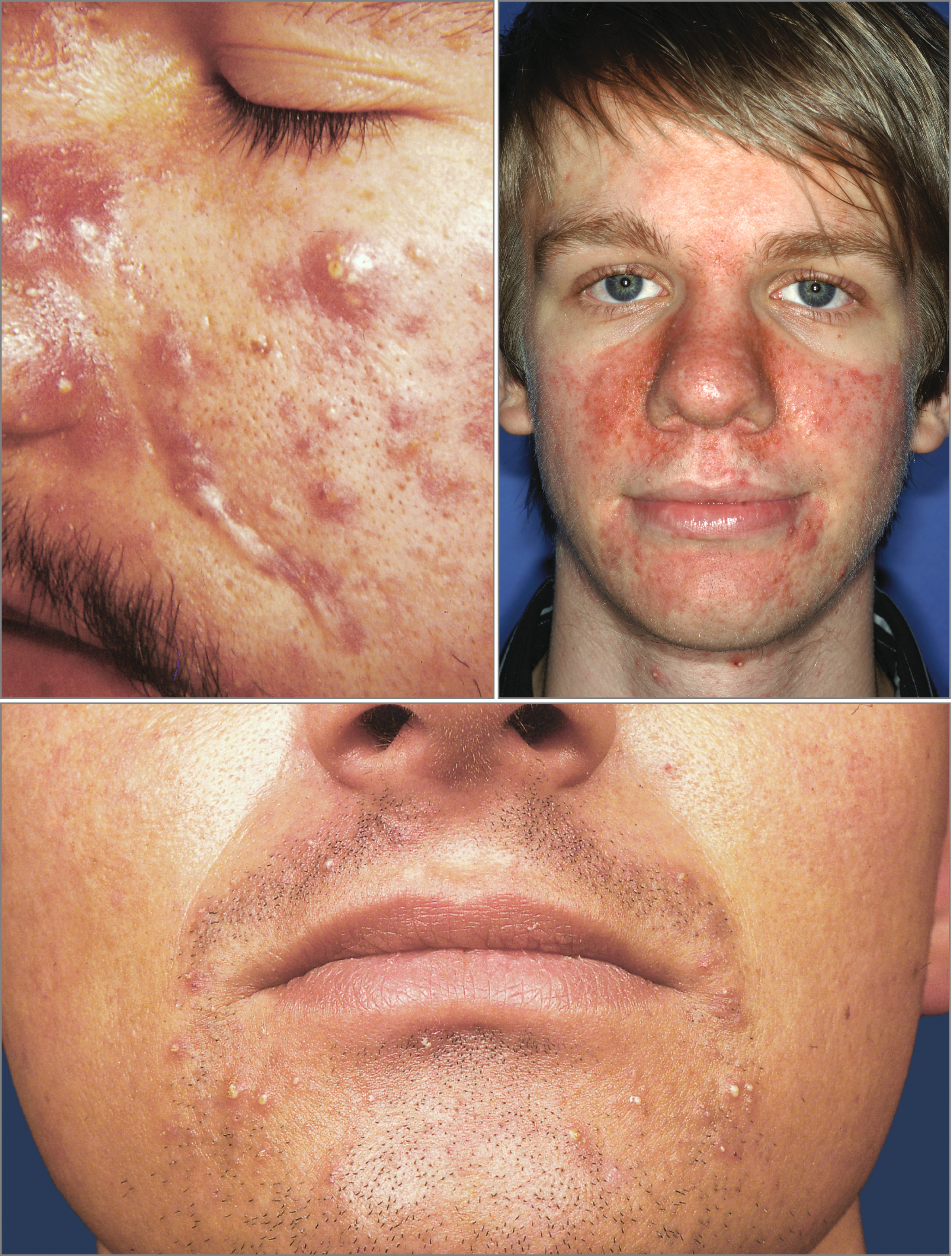 Acne-Mimicking Diseases | SpringerLink