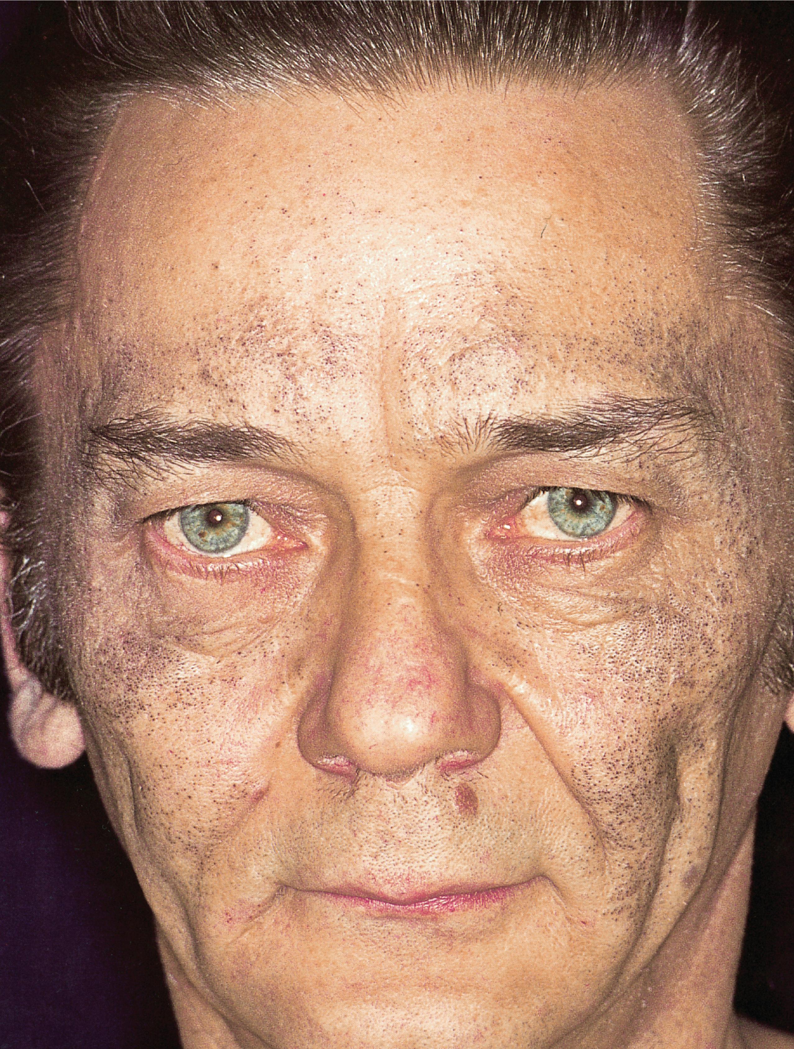 Acne-Mimicking Diseases   SpringerLink