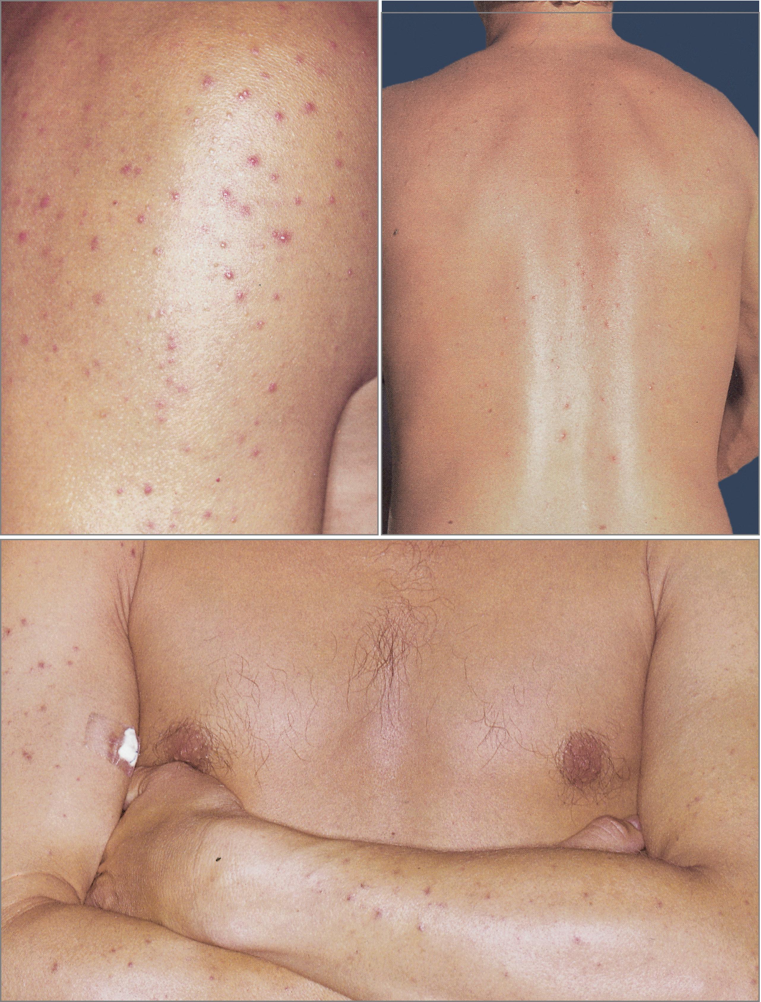 Acne-Mimicking Diseases | SpringerLink