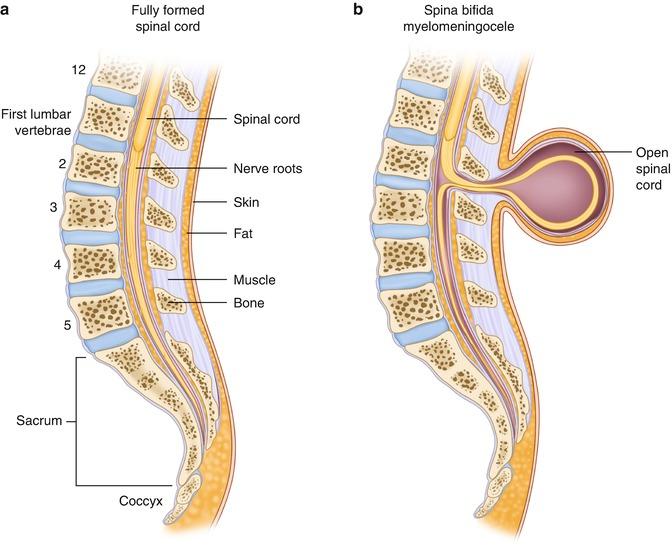 Neural Tube Defects | SpringerLink