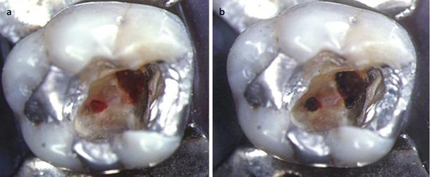 Laser-Assisted Endodontics | SpringerLink
